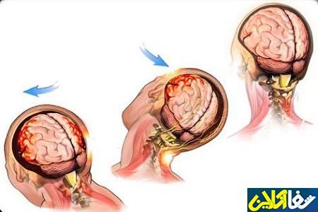 Лимфоузлы и сотрясение мозга